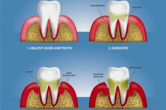 Gum Disease Treatment - Arcade Dental