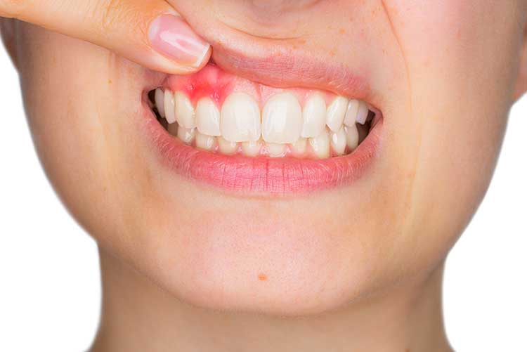 treatment for tooth cavities - Arcade Dental