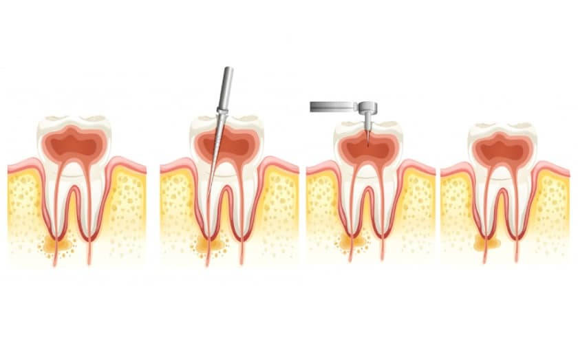 When You Should Consider Getting A Root Canal Treatment