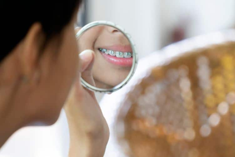Everything You Need to Know Before Getting Six Month Braces